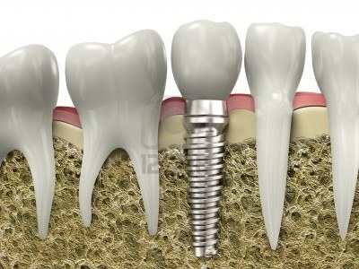 8920098 very high resolution 3d rendering of a dental implant