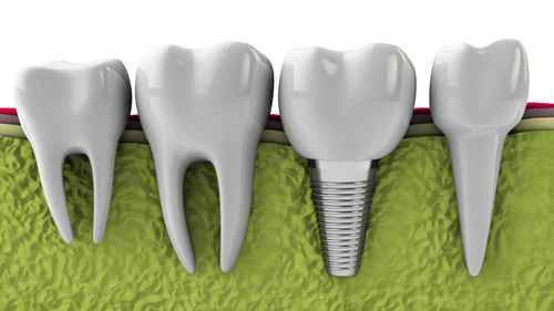 Georgia Dental Implant Center November Top Questions to Ask about Dental Implants Image 1