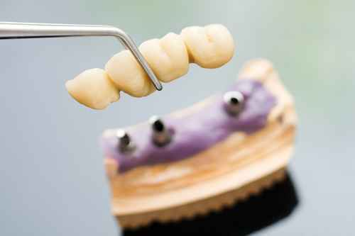 Georgia Dental Implant Center November Top Questions to Ask about Dental Implants Image 2